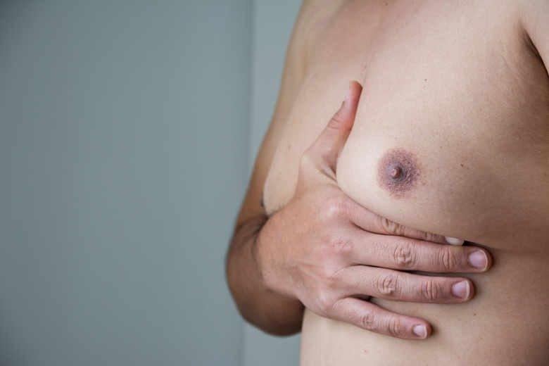 Гинекомастия - проблема мужчин, состоящая из перерастающей ткани груди