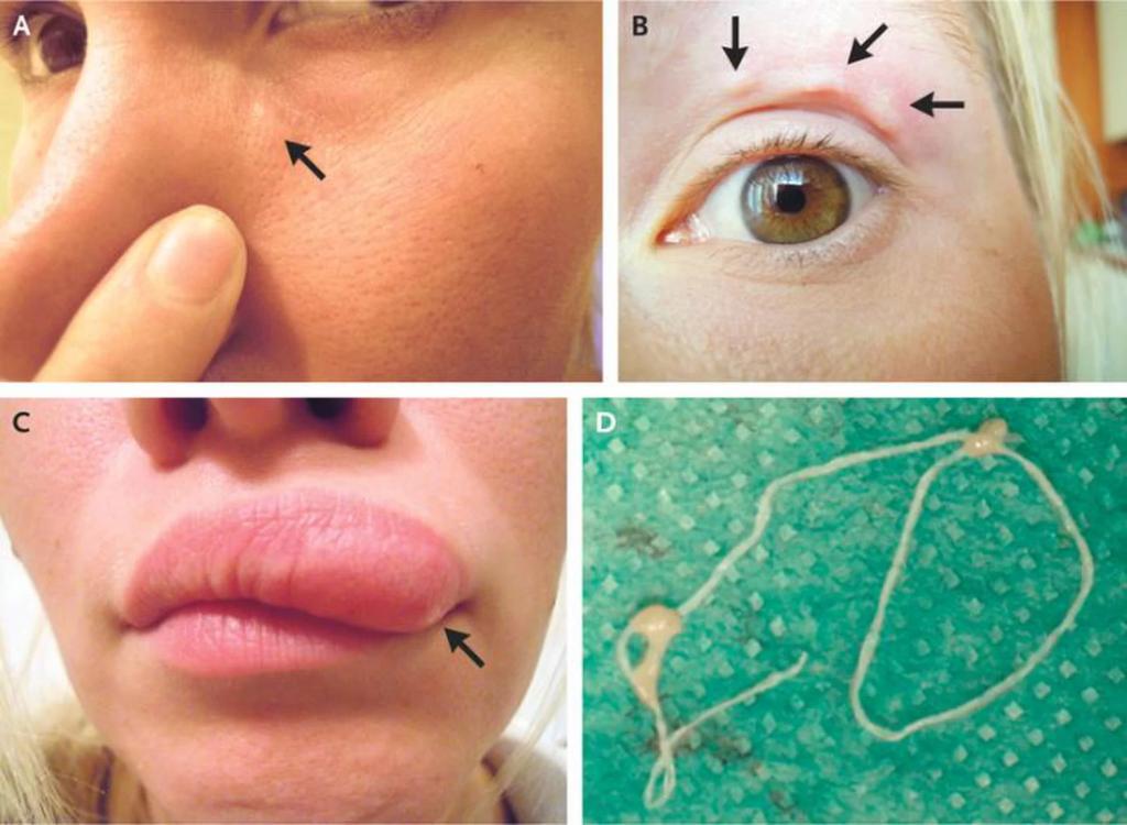 Ползающий червь под кожей на лице