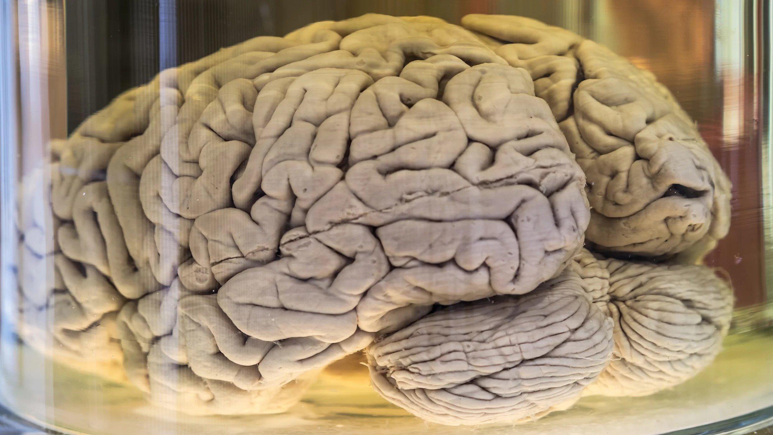 извилины мозга