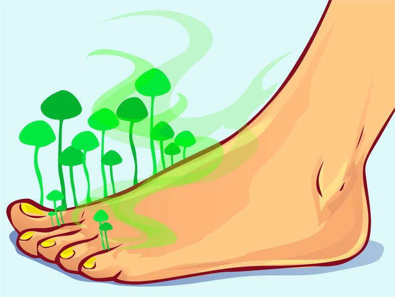 Лечение микоза чесноком может привести к повреждению кожи