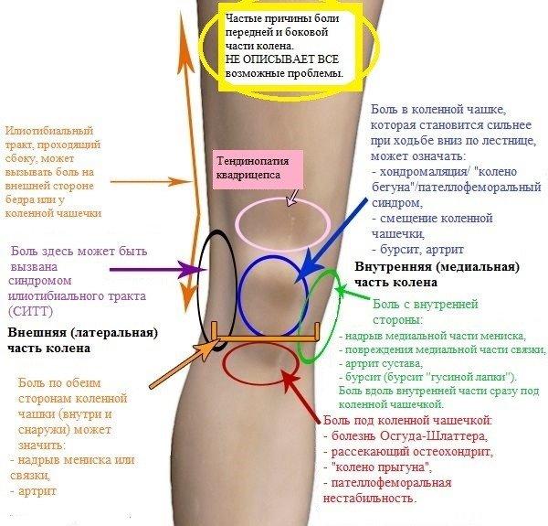 боль в колене инфографика