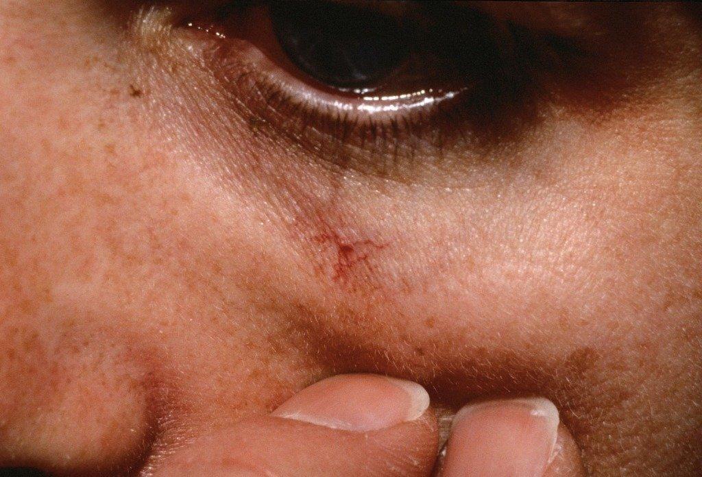 Область под глазом на верхней щеке является очень характерным местом для пауков-телеангиэктазий у детей