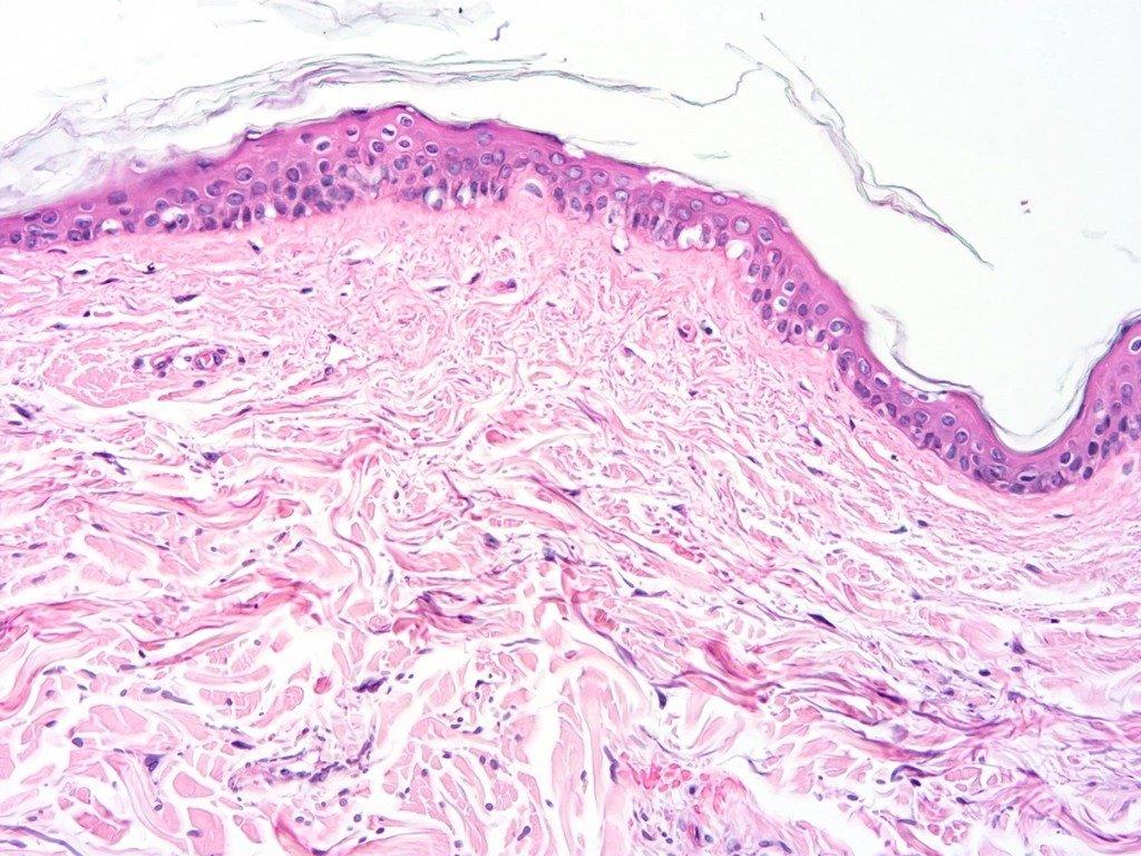 кожа под микроскопом