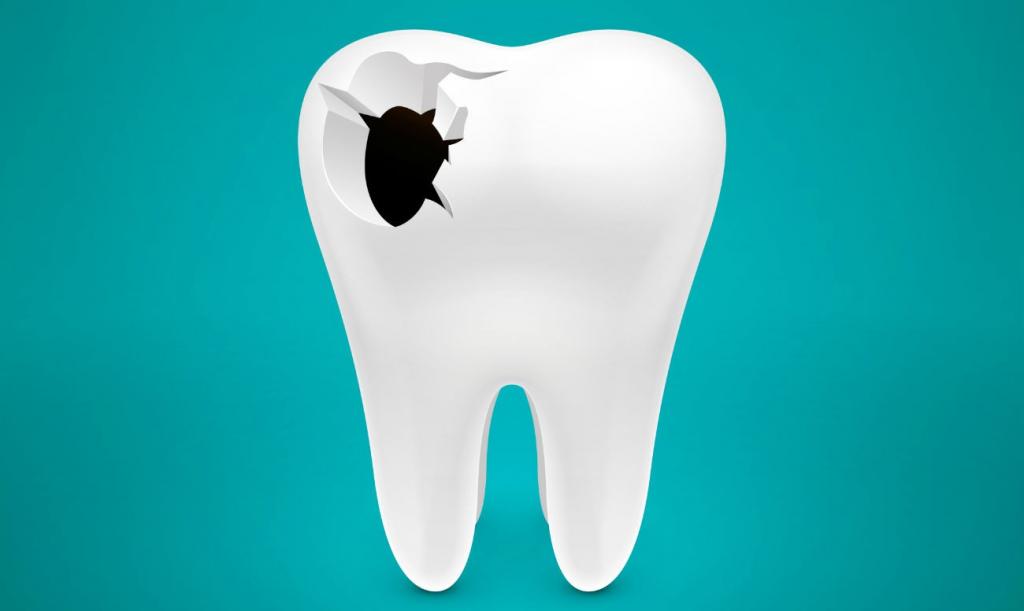 отверстия в зубах