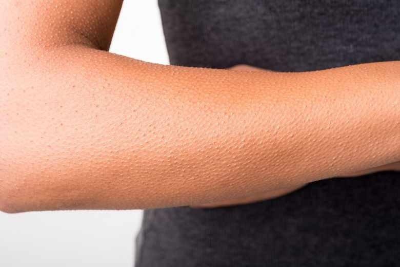 Гусиная кожа - это признак заболевания?