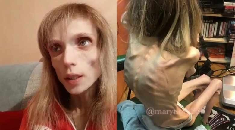 У нее анорексия