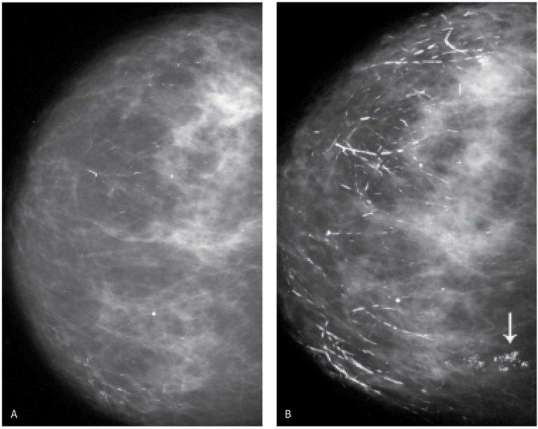 Почему появляются боли в груди у женщин и насколько это опасно