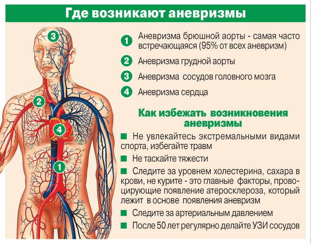 аневризмы инфографика