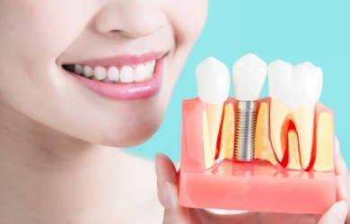 Особенности и положительные критерии имплантации зубов