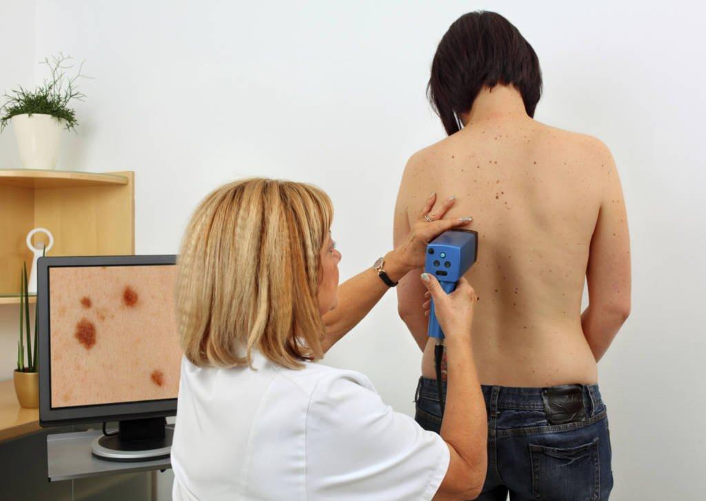 Определение меланомы и лечение заболевания