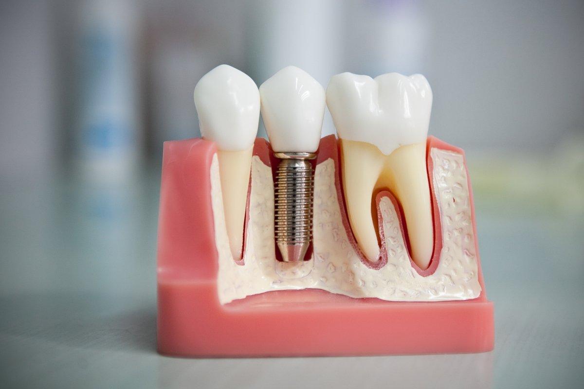 Зубные импланты в стоматологии