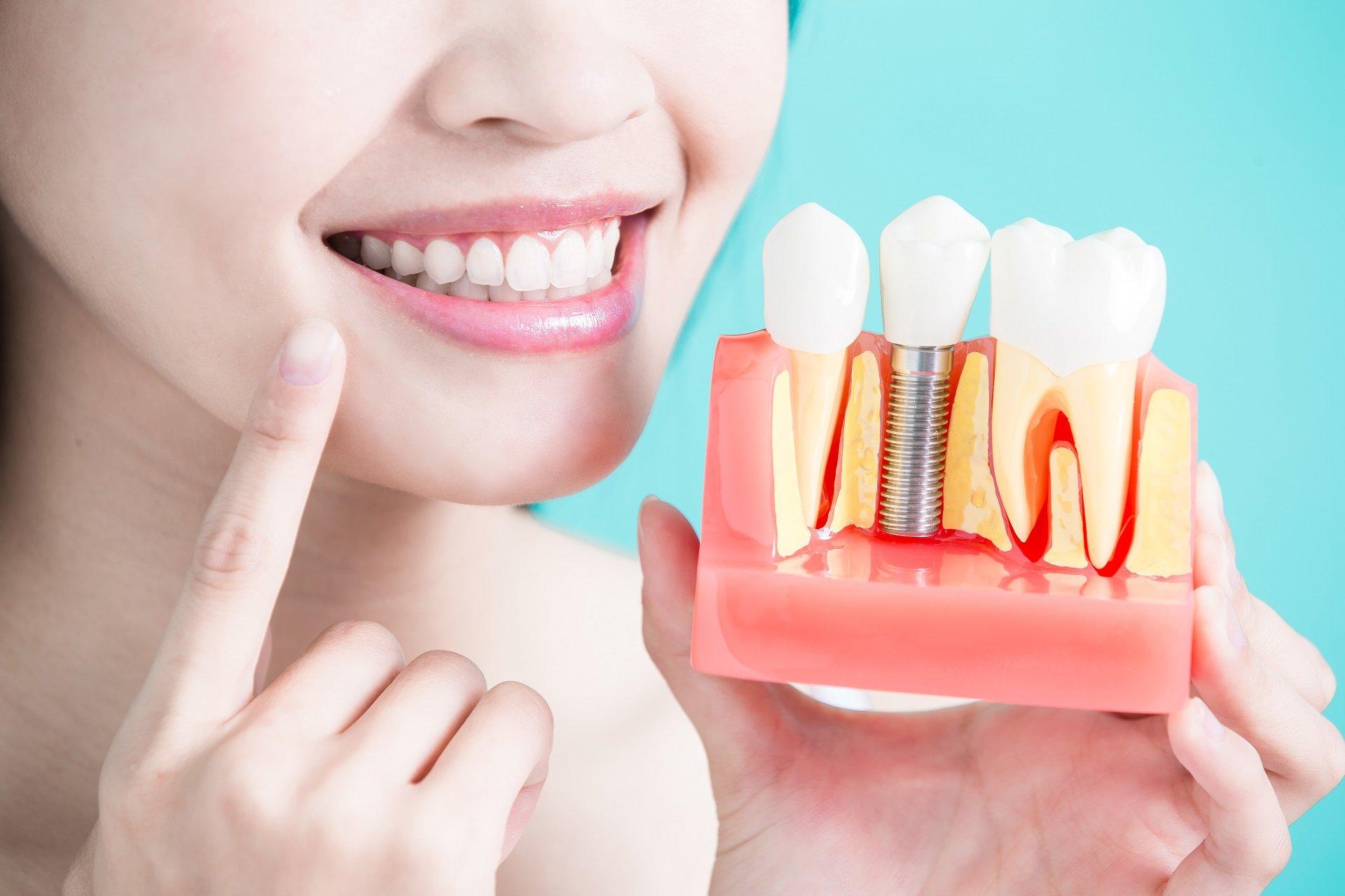 Имплантация зубов: что должен знать пациент