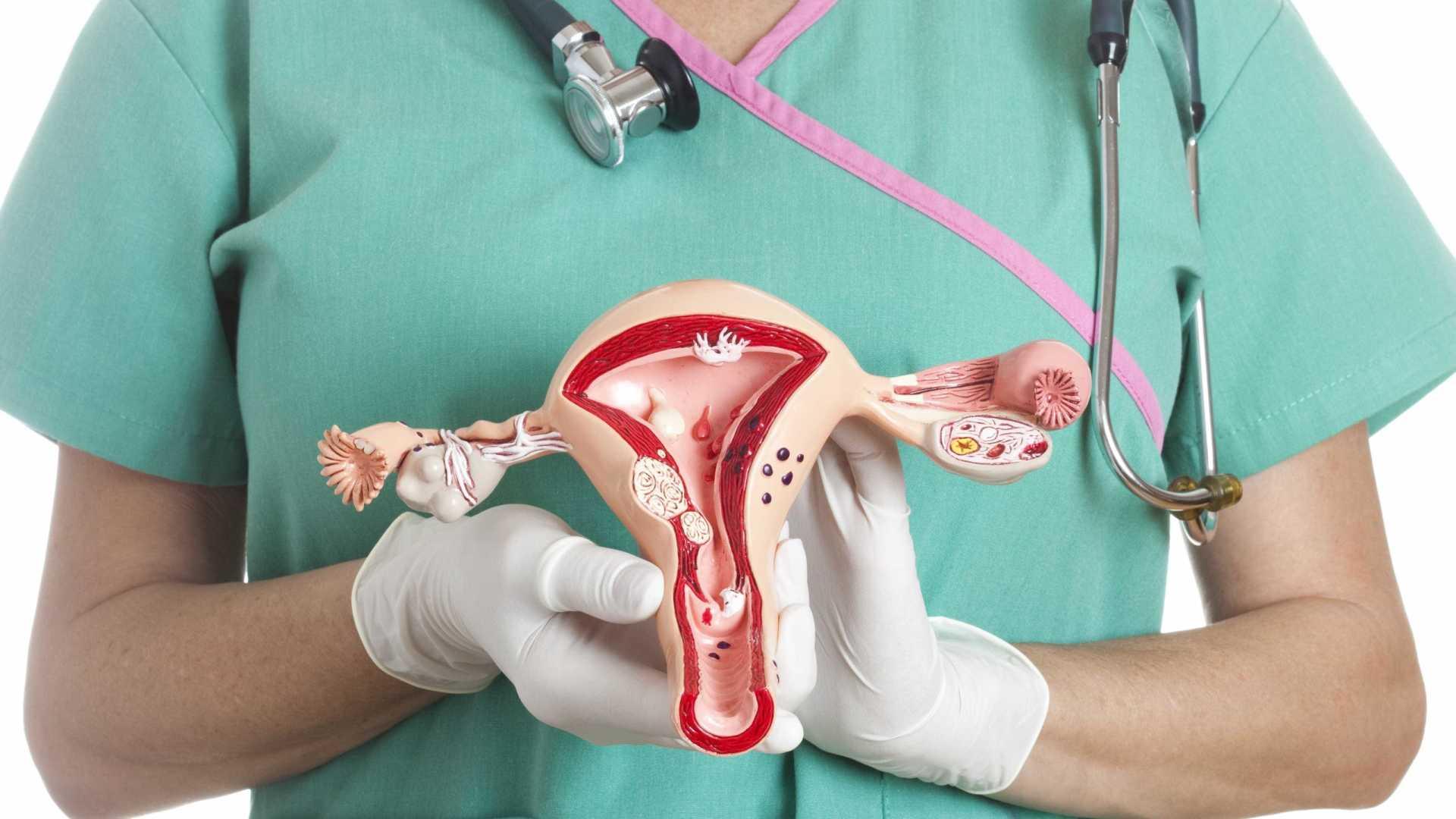 5 правил профилактики дисфункции яичников и способы диагностики проблемы