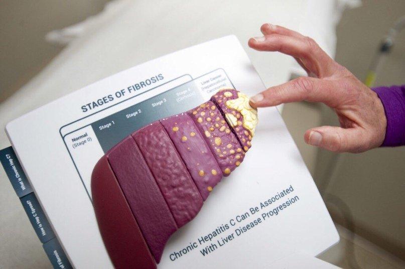 Лечение гепатита в москве больницы